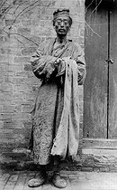 A beggar suffering from the plague. Manchuria (China), about 1900. © Collection Harlingue/Roger-Viollet