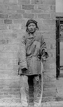 A beggar suffering from the plague, 48 hours after the effect of the illness. Manchuria (China). © Collection Harlingue/Roger-Viollet
