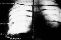 Radiography of the thorax of the president Theodore Roosevelt showing the place of the bullet which wounded him during the murder in October 1912. © Albert Harlingue / Roger-Viollet