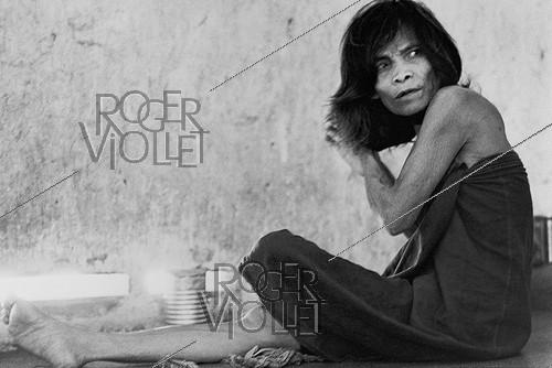 Roger-Viollet | 608698 |  Is it insanity or fear in her eyes ? . Patient confined in a mental hospital. Saigon (Vietnam), 1975. | © Françoise Demulder / Roger-Viollet