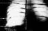 Radiographie du thorax du président Théodore Roosevelt montrant l'emplacement de la balle qui le blessa au cours d'un attentat en Octobre 1912. © Albert Harlingue / Roger-Viollet